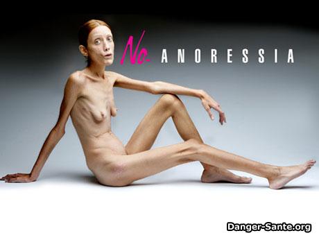 une publicité avec une femme sur l'anorexie