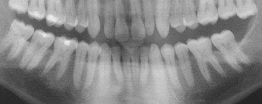 Rebassage dentaire