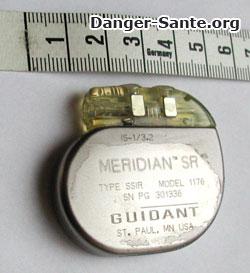 photo image d'un pacemaker pace maker